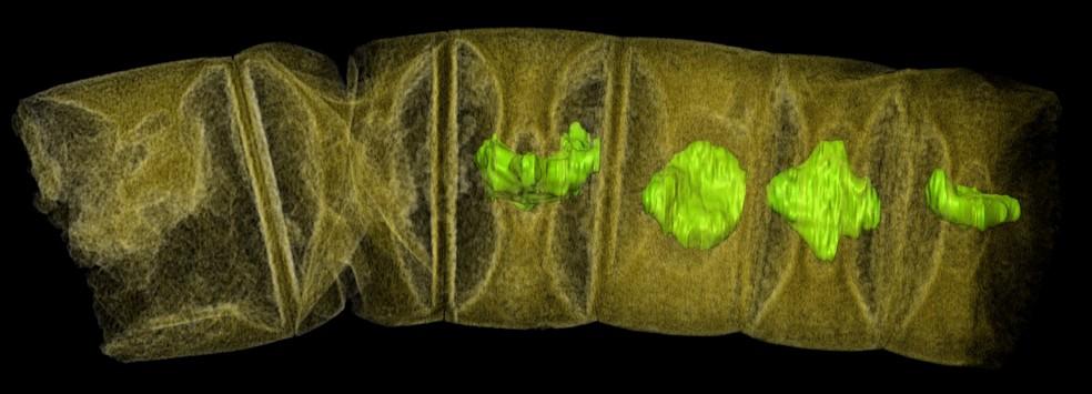Raio-x de algas vermelhas como fósseis, tingidas para mostrar detalhes, pode representar as plantas mais antigas da Terra (Foto: Courtesy Stefan Bengtson/Handout via REUTERS )
